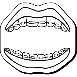 Mouth4 - Indoor NoteKeeper&#0153 Magnet